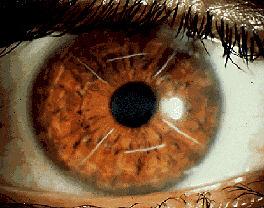 opération myopie kératotomie radiaire