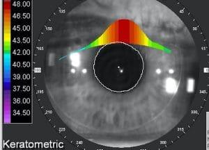 Opération presbytie laser