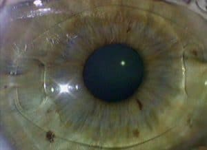 Opération myopie implant Artisan