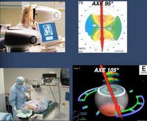 Opération de l'astigmatisme. Rotation de l'axe.